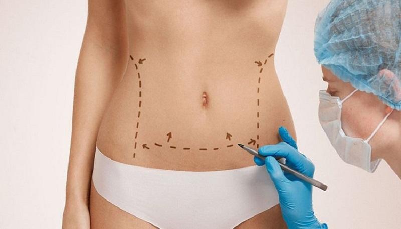 جراحی زیبایی شکم در عمل زیبایی بدن