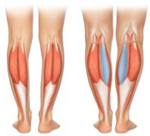 پروتز ساق پا در عمل زیبایی بدن