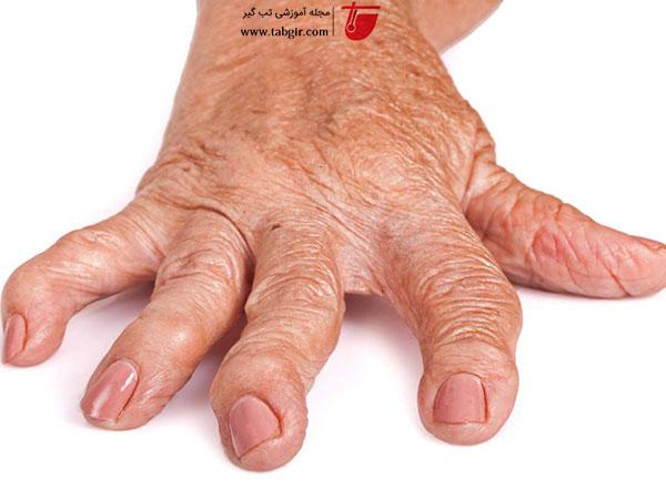 تغییر شکا مفاصل در بیماری آرتروز