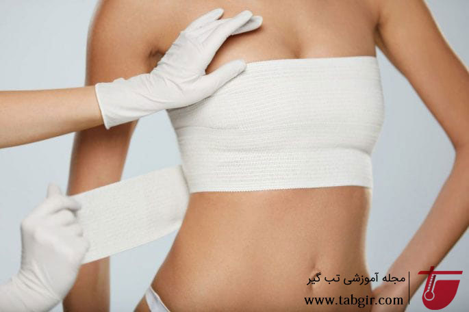 مراقبت های بعد از عمل ماموپلاستی