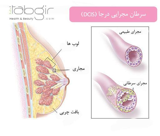 سرطان مجرایی درجا در درجه بندی سرطان سینه