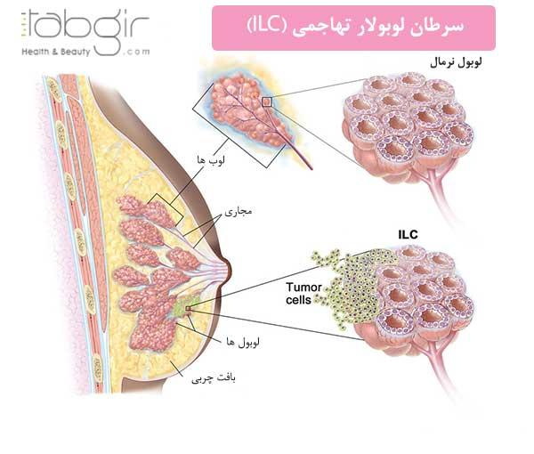 سرطان لوبولار تهاجمی