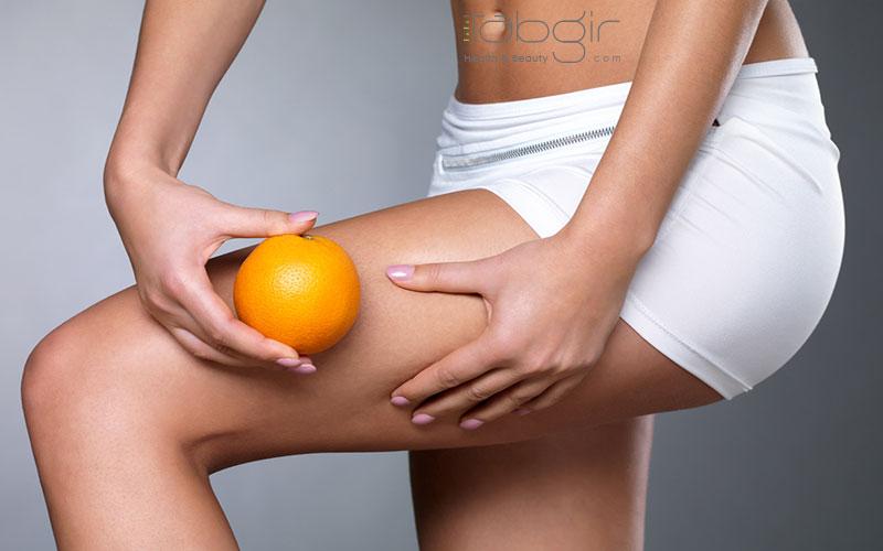 علت پوست پرتقالی