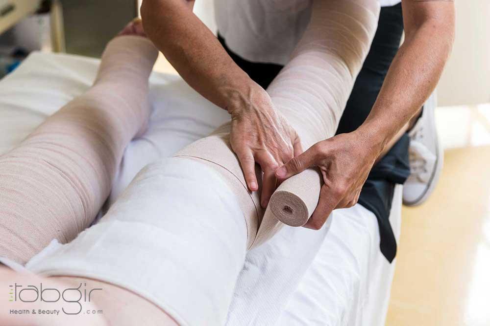 درمان زخم وریدی ساق پا